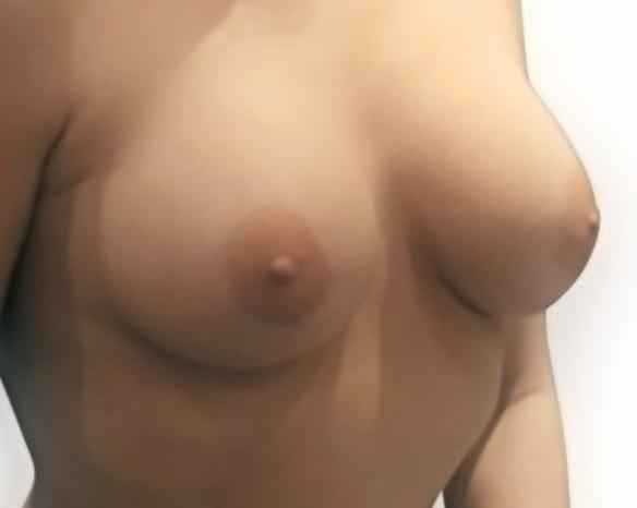 bohemian-beauty-brustvergroesserung-schweiz-2