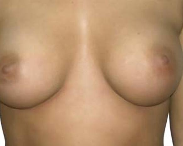bohemian-beauty-brustvergroesserung-schweiz-4