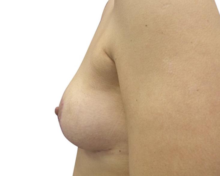 bohemianbeauty-bruststraffung-nachher-2