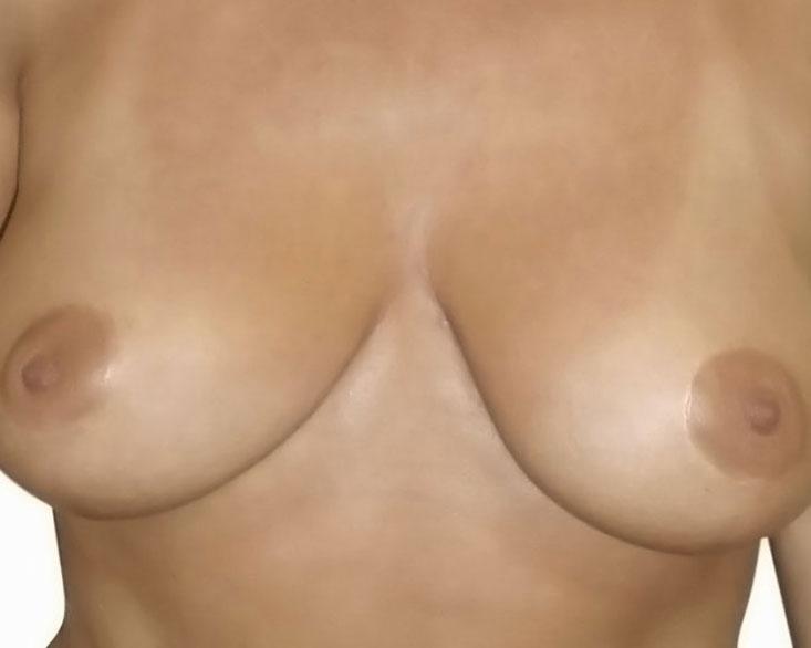 bohemianbeauty-bruststraffung-nachher-6
