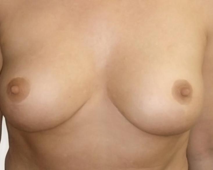 bohemianbeauty-bruststraffung-nachher