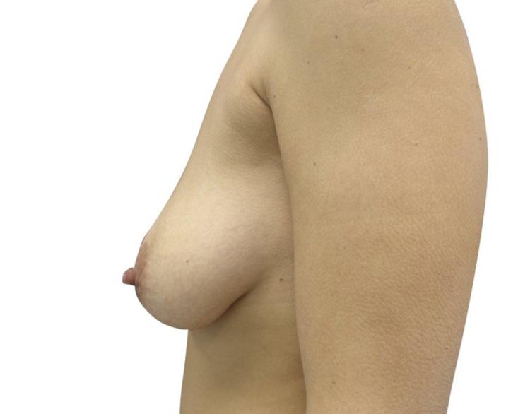 bohemianbeauty-bruststraffung-vorher-2
