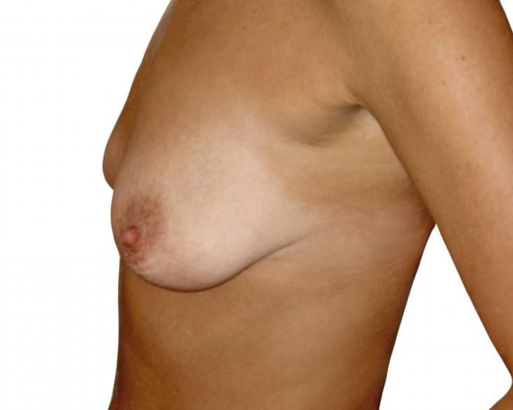 bohemianbeauty-bruststraffung-vorher-5