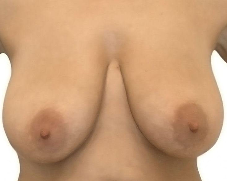 bohemianbeauty-bruststraffung-vorher-6
