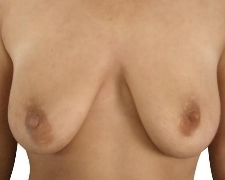 bohemianbeauty-bruststraffung-vorher
